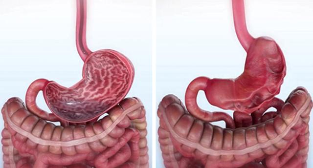 Endoscopic Sleeve Gastroplasty