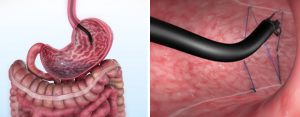 Endoscopic Sleeve Gastroplasty – Non Surgical Weight Loss