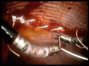 Robotic approach for large lateral incisional hernia