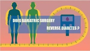 bariatric-surgery-biabetic