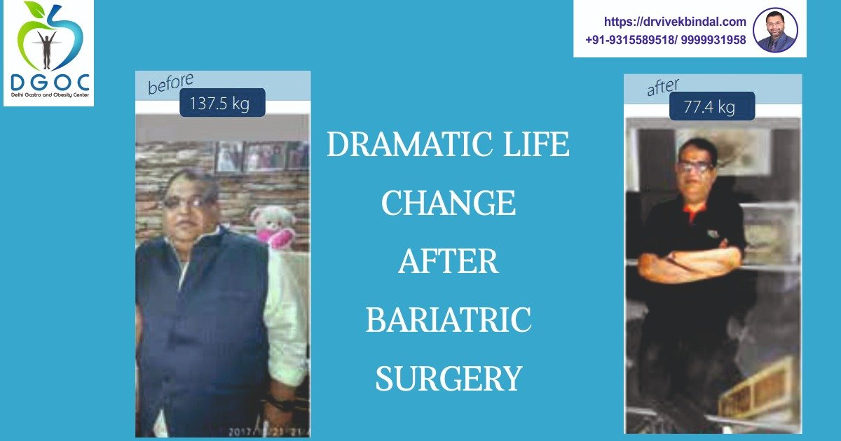 Dramatic life change after Bariatric Surgery