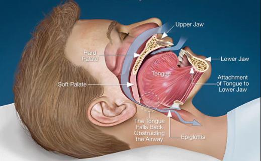 HOW OBESITY CAUSES SLEEP APNEA?